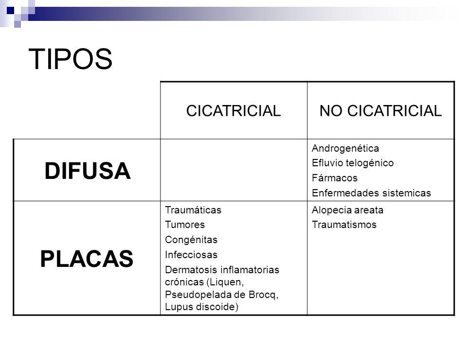 TIPOS DIFUSA PLACAS CICATRICIAL NO CICATRICIAL Androgenética