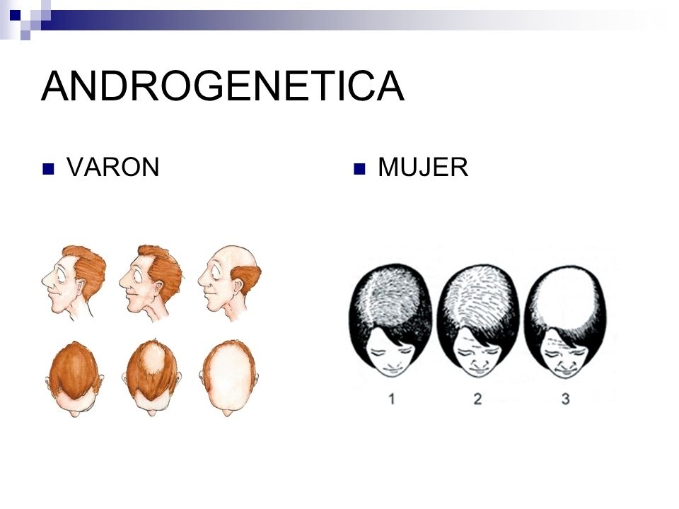 ANDROGENETICA VARON MUJER