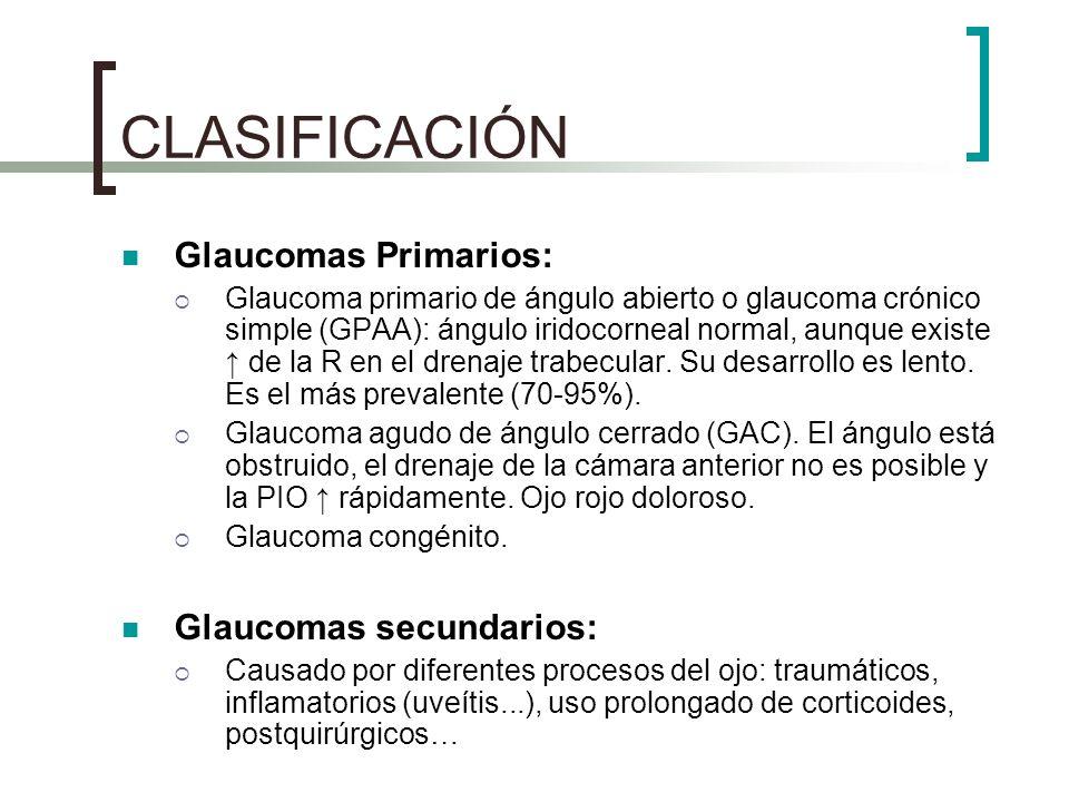 CLASIFICACIÓN Glaucomas Primarios: Glaucomas secundarios: