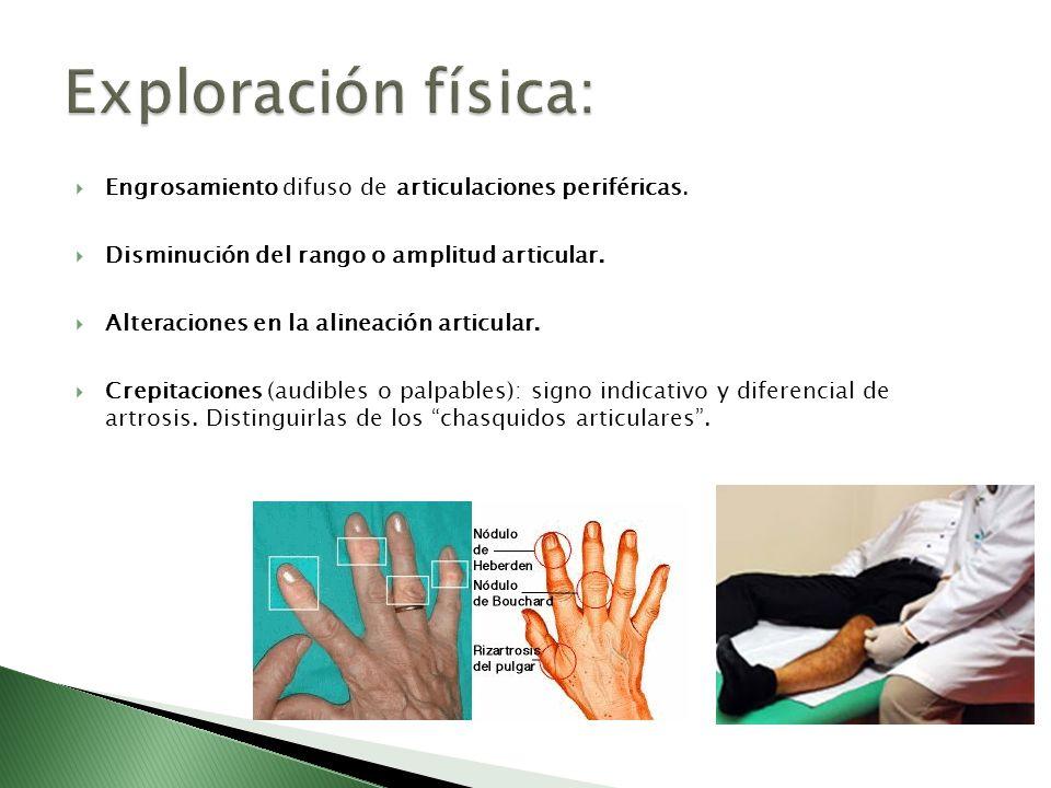 Exploración física: Engrosamiento difuso de articulaciones periféricas. Disminución del rango o amplitud articular.