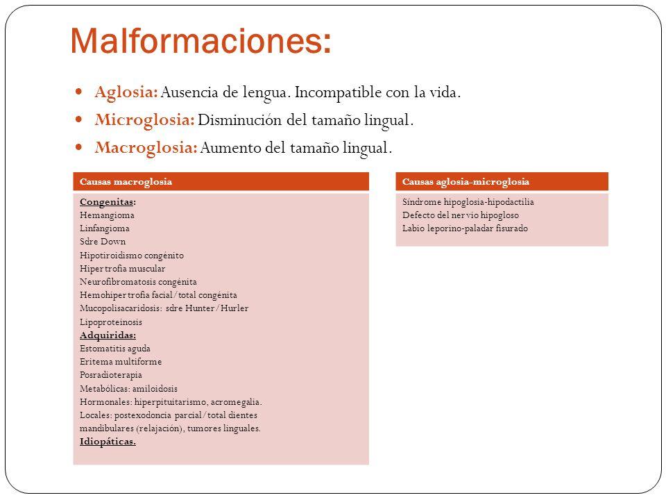 Malformaciones: Aglosia: Ausencia de lengua. Incompatible con la vida.