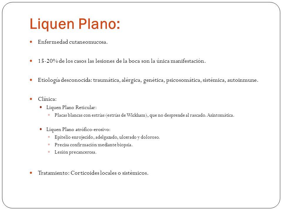 Liquen Plano: Enfermedad cutaneomucosa.