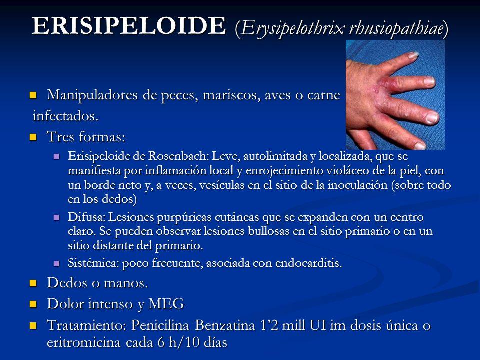 ERISIPELOIDE (Erysipelothrix rhusiopathiae)