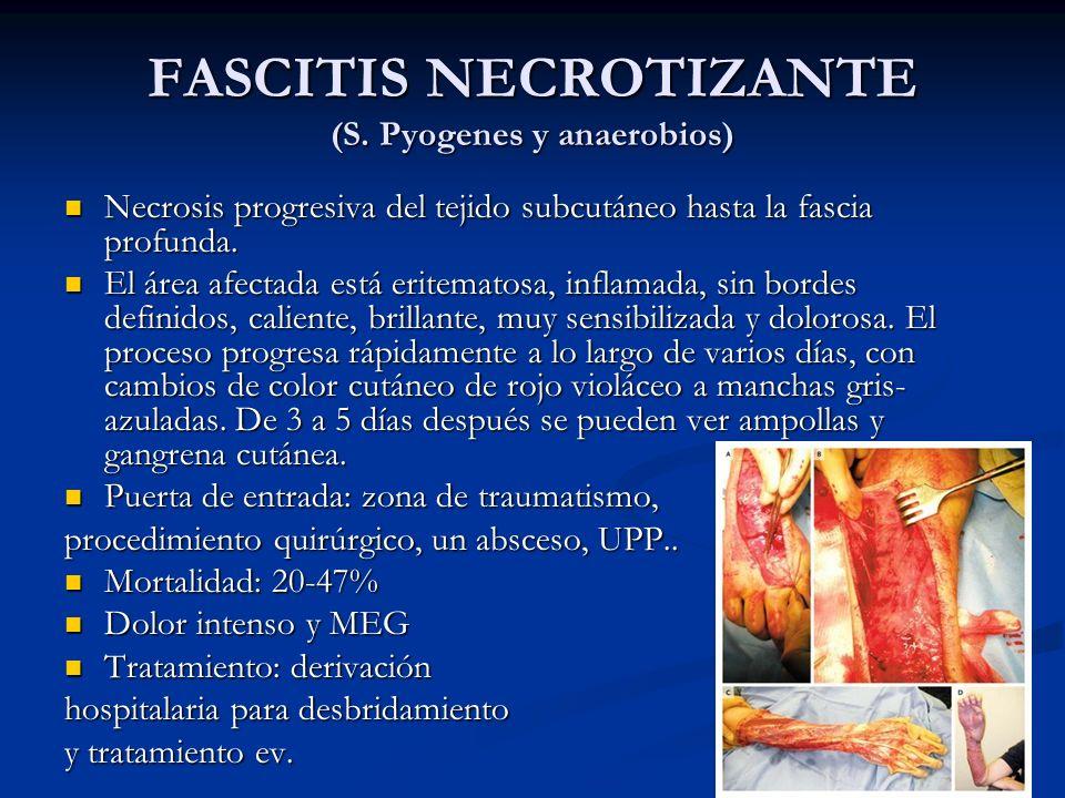 FASCITIS NECROTIZANTE (S. Pyogenes y anaerobios)