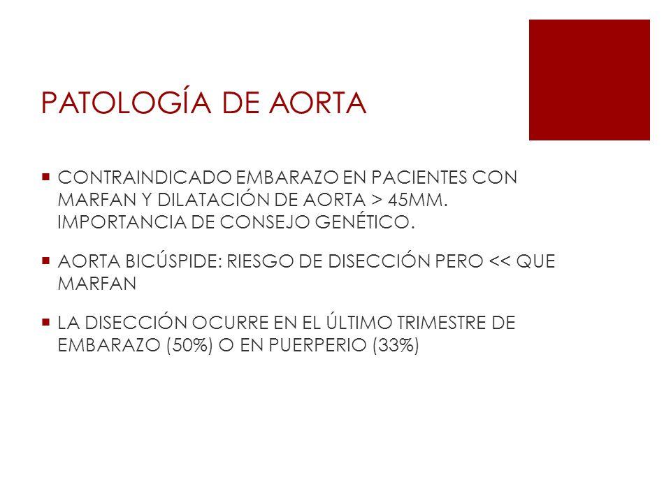 PATOLOGÍA DE AORTA CONTRAINDICADO EMBARAZO EN PACIENTES CON MARFAN Y DILATACIÓN DE AORTA > 45MM. IMPORTANCIA DE CONSEJO GENÉTICO.