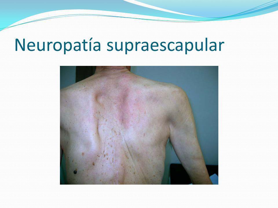 Neuropatía supraescapular