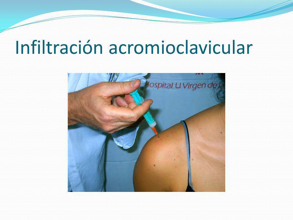Infiltración acromioclavicular