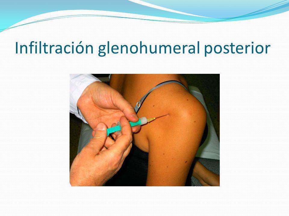 Infiltración glenohumeral posterior