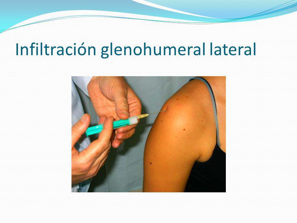 Infiltración glenohumeral lateral