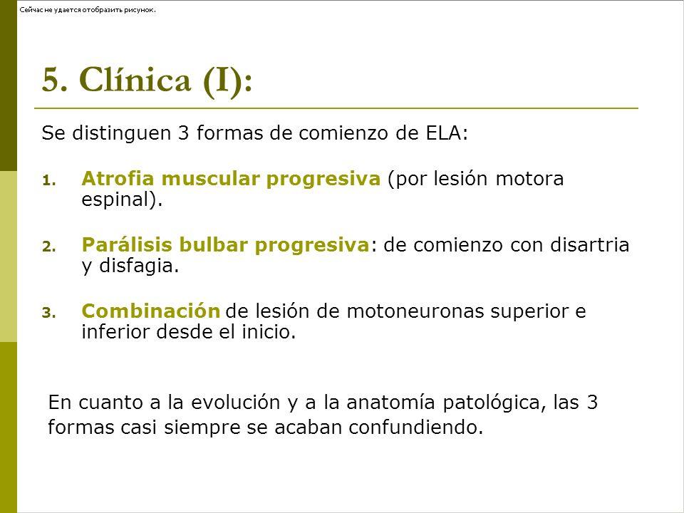 5. Clínica (I): Se distinguen 3 formas de comienzo de ELA: