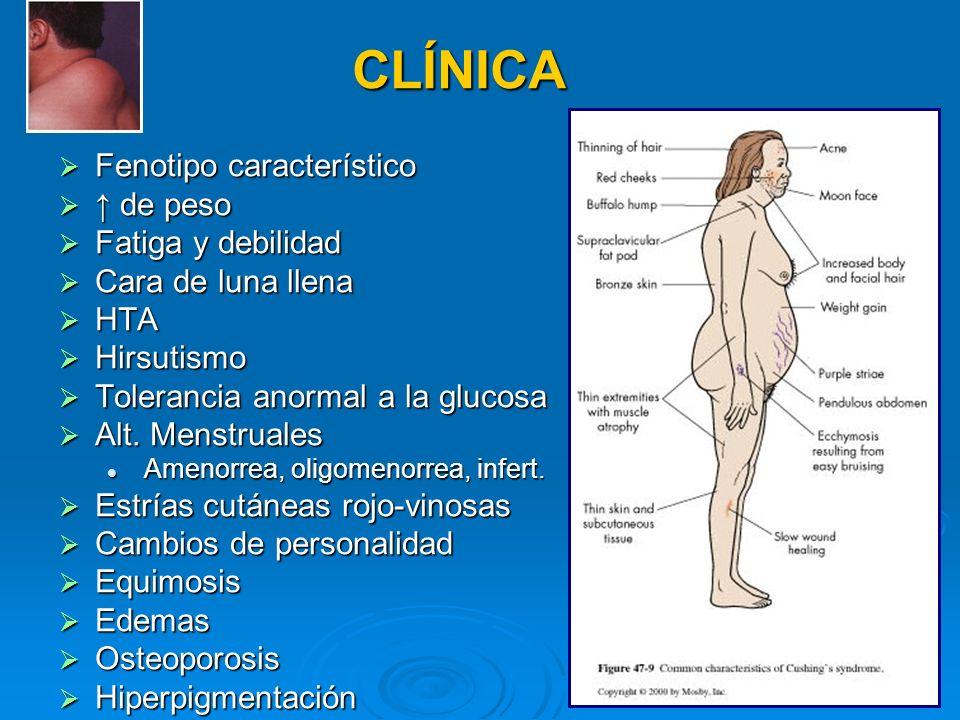 CLÍNICA Fenotipo característico ↑ de peso Fatiga y debilidad