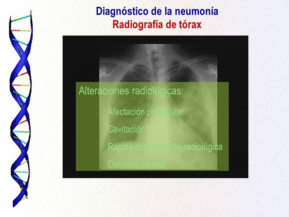 Diagnóstico de la neumonía