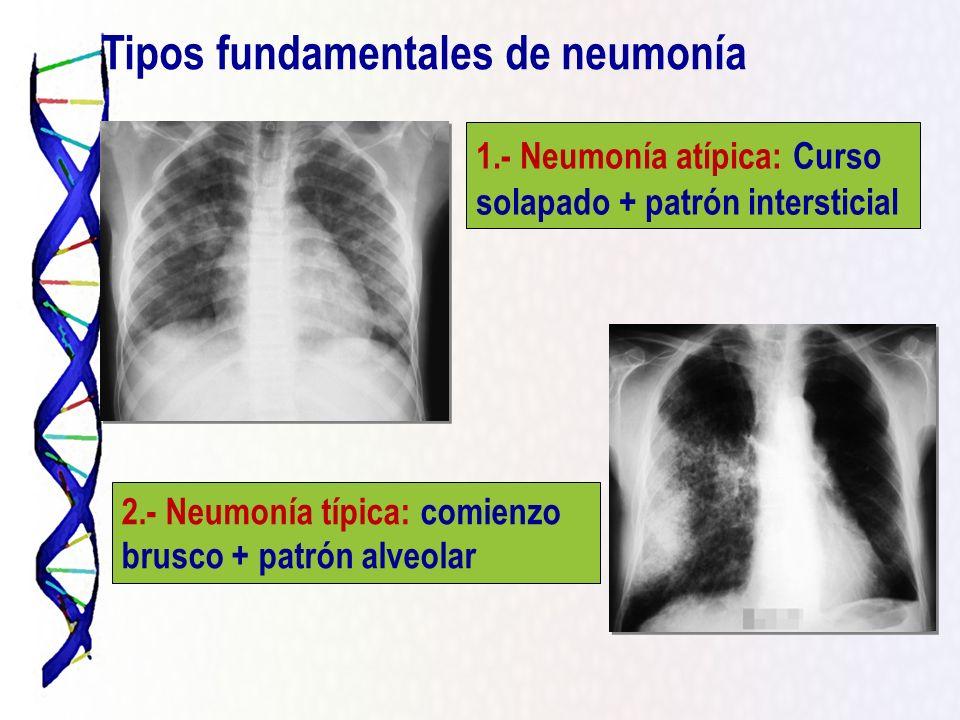 Tipos fundamentales de neumonía