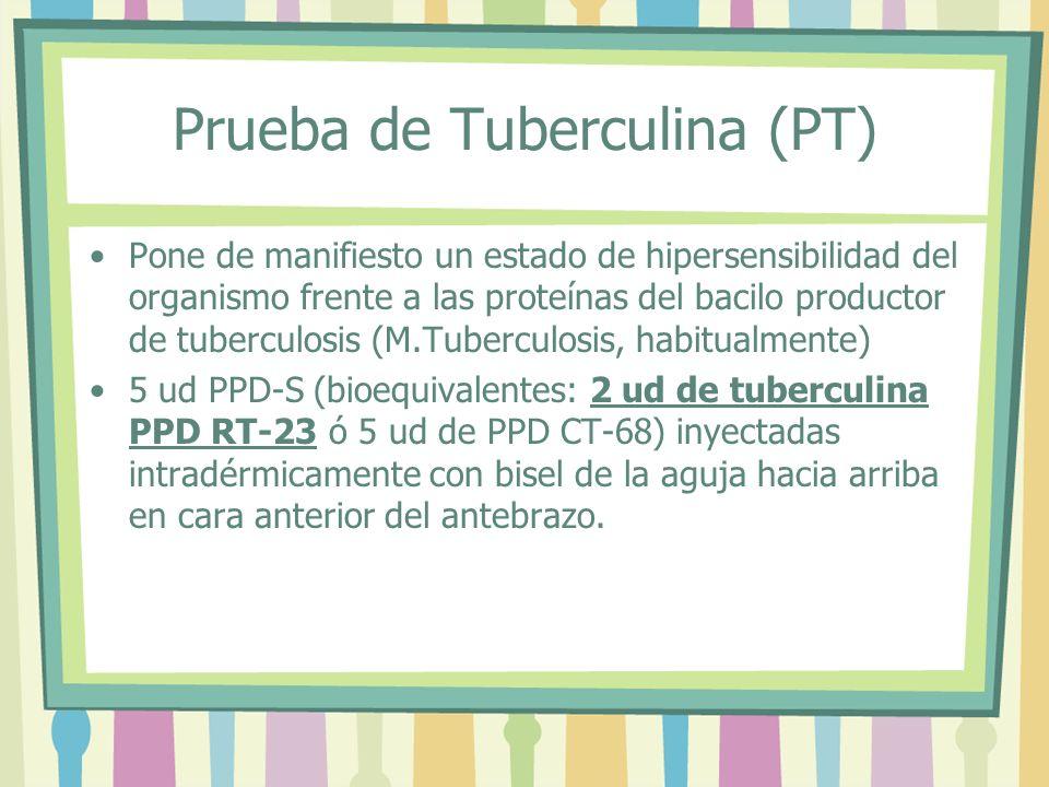Prueba de Tuberculina (PT)