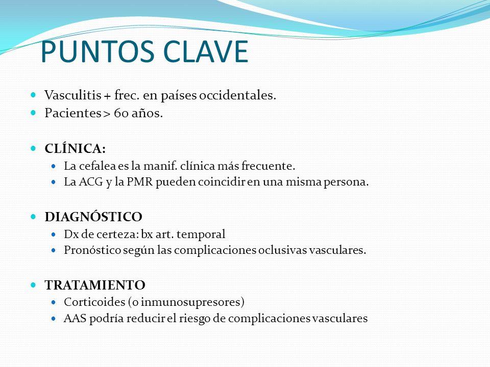 PUNTOS CLAVE Vasculitis + frec. en países occidentales.