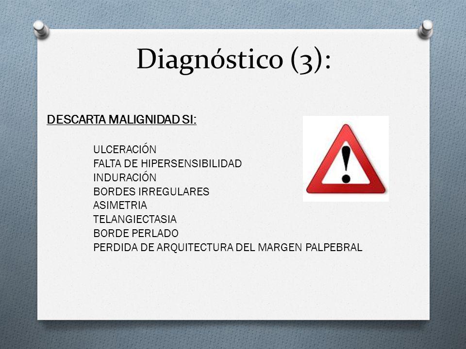 Diagnóstico (3): DESCARTA MALIGNIDAD SI: ULCERACIÓN