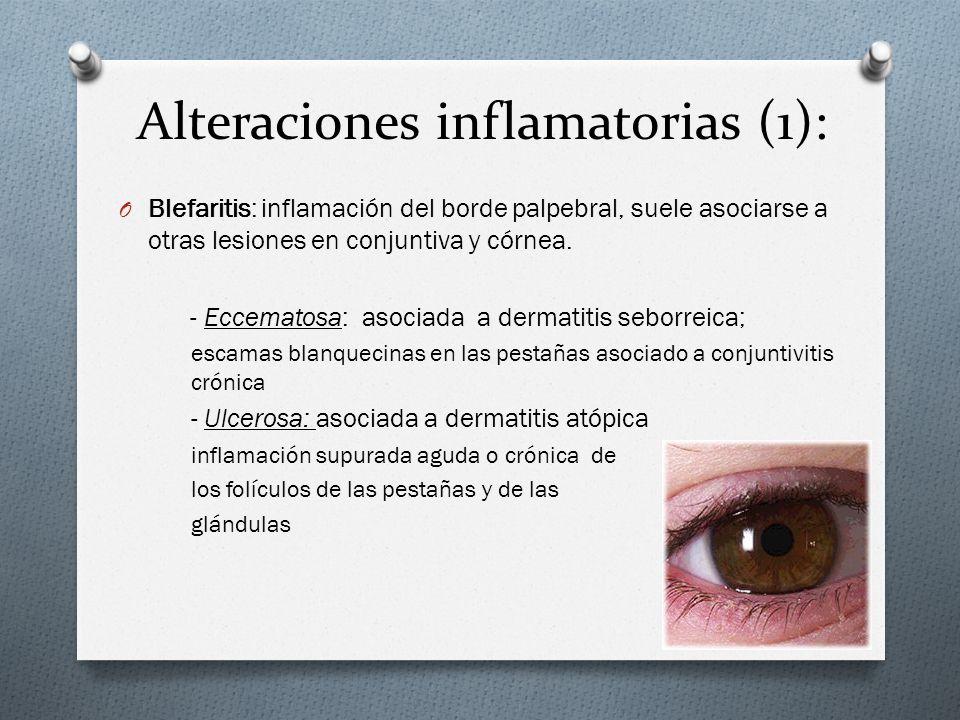 Alteraciones inflamatorias (1):