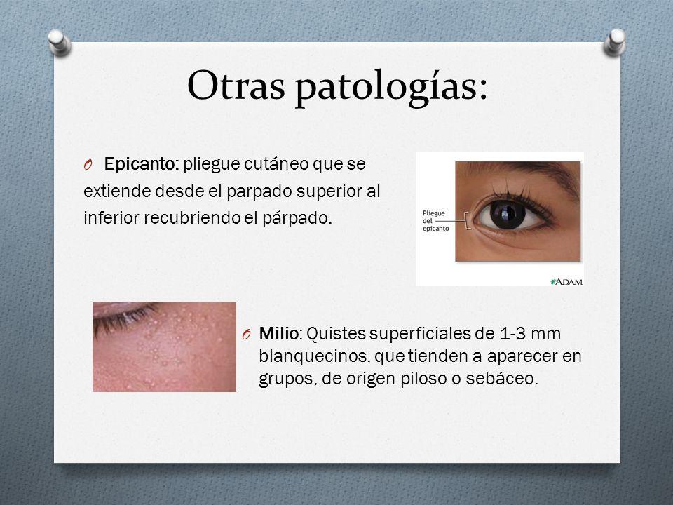 Otras patologías: Epicanto: pliegue cutáneo que se