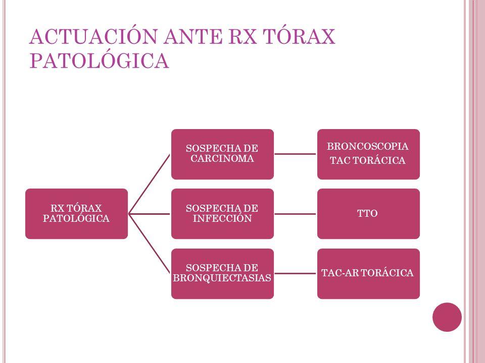 ACTUACIÓN ANTE RX TÓRAX PATOLÓGICA