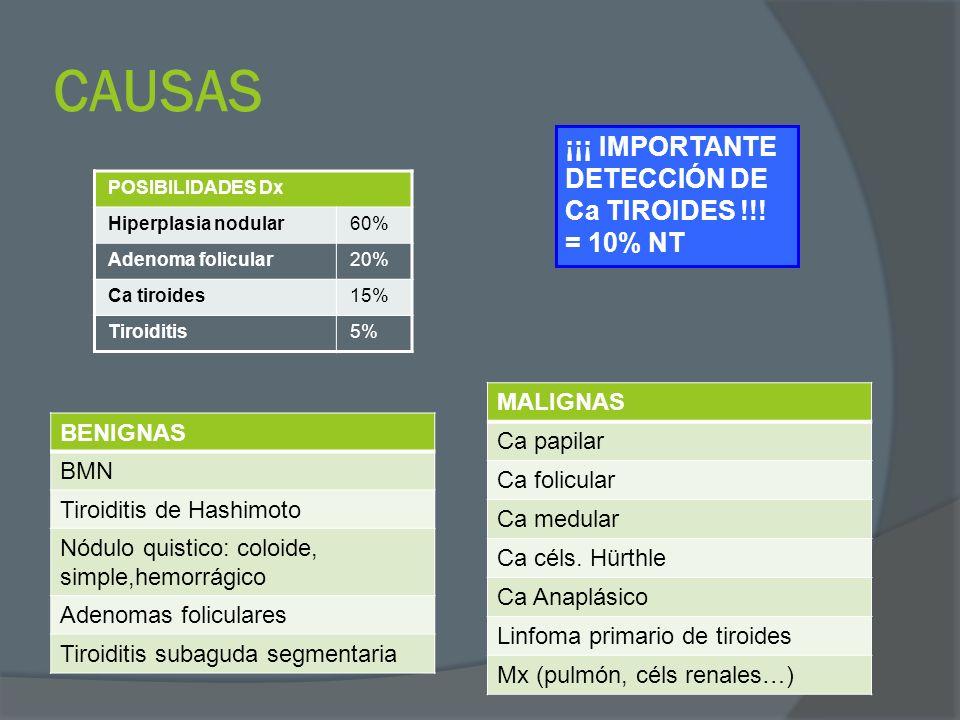 CAUSAS ¡¡¡ IMPORTANTE DETECCIÓN DE Ca TIROIDES !!! = 10% NT MALIGNAS