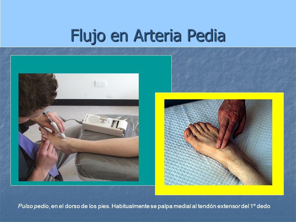 Flujo en Arteria Pedia Pulso pedio, en el dorso de los pies.