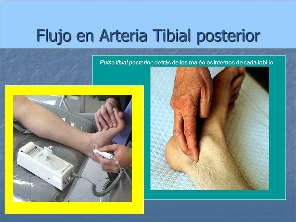 Flujo en Arteria Tibial posterior