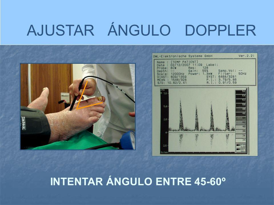 INTENTAR ÁNGULO ENTRE 45-60º