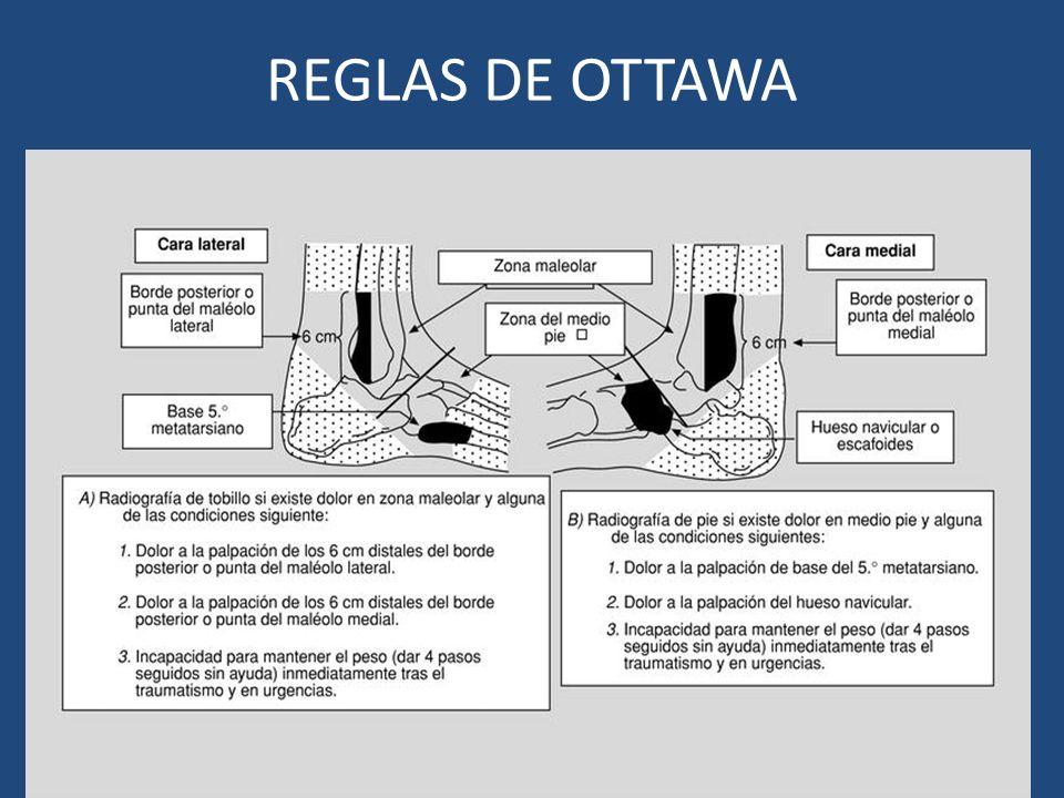 REGLAS DE OTTAWA
