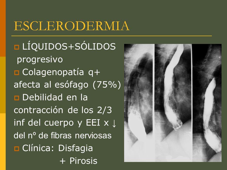 ESCLERODERMIA LÍQUIDOS+SÓLIDOS progresivo Colagenopatía q+