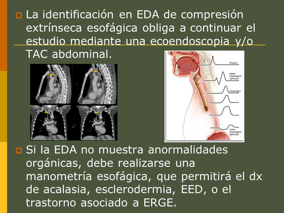 La identificación en EDA de compresión extrínseca esofágica obliga a continuar el estudio mediante una ecoendoscopia y/o TAC abdominal.