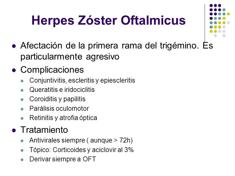 Herpes Zóster Oftalmicus