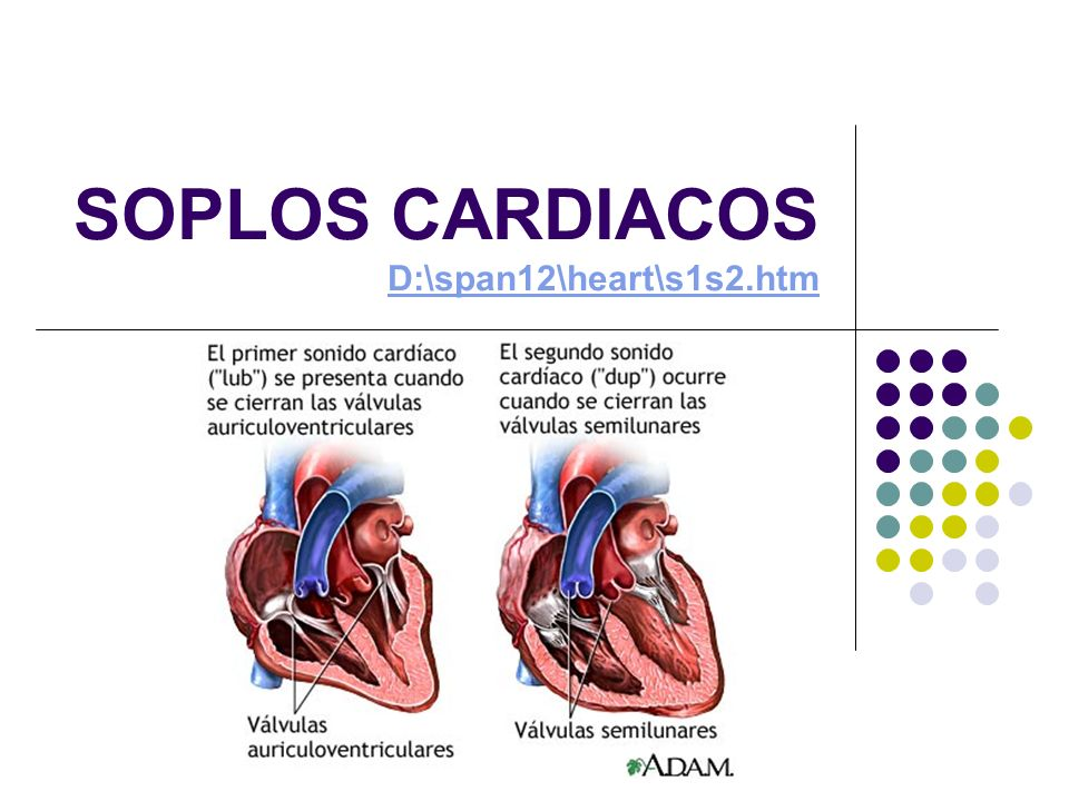 SOPLOS CARDIACOS D:\span12\heart\s1s2.htm