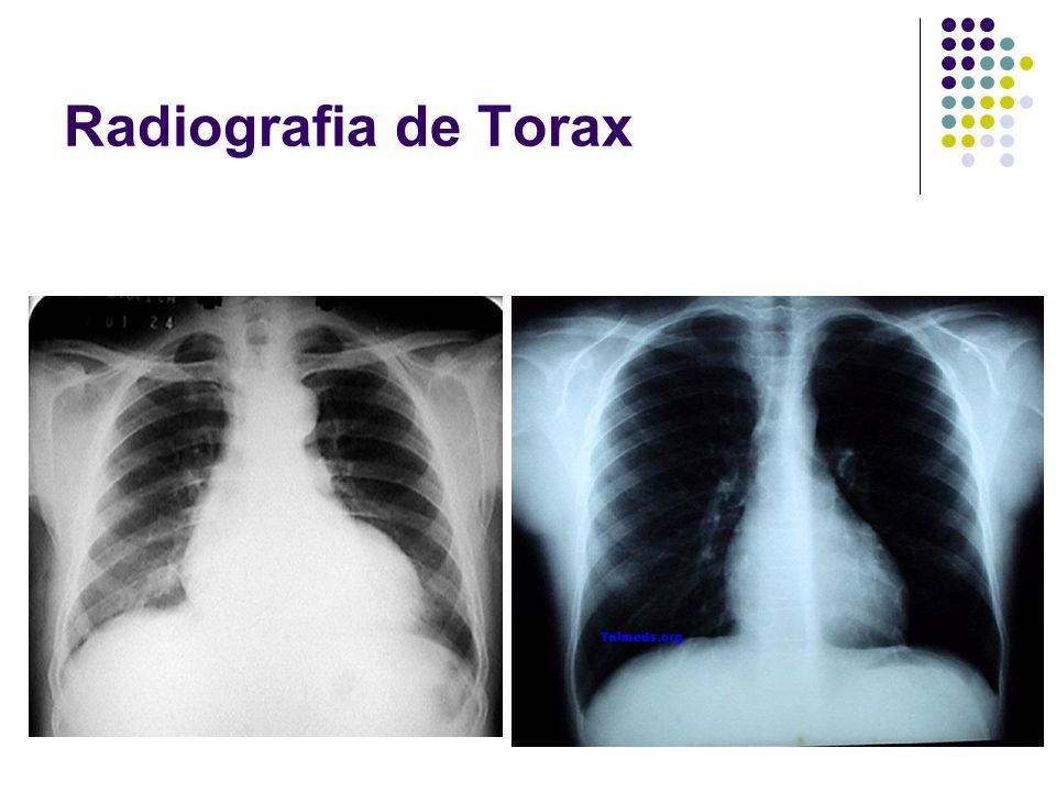 Radiografia de Torax Importante diferenciar lo que seria una cardiomegalia
