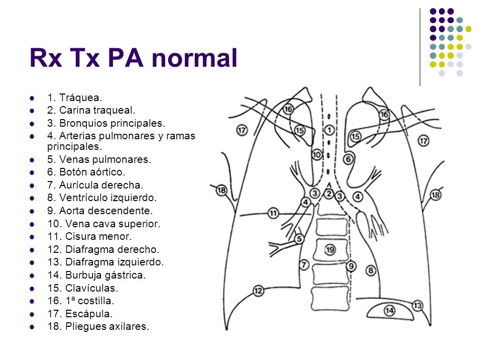 Rx Tx PA normal 1. Tráquea. 2. Carina traqueal.
