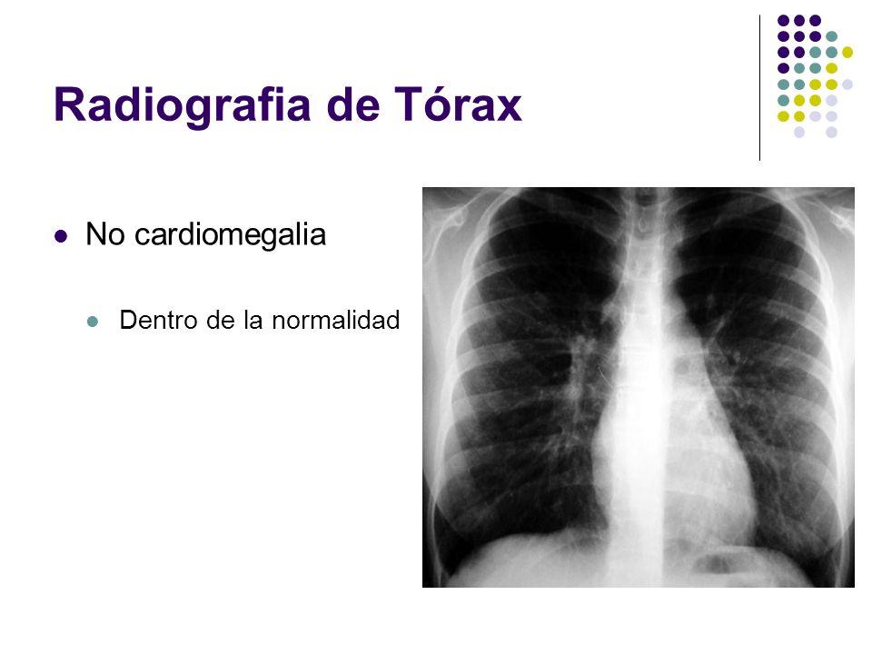 Radiografia de Tórax No cardiomegalia Dentro de la normalidad