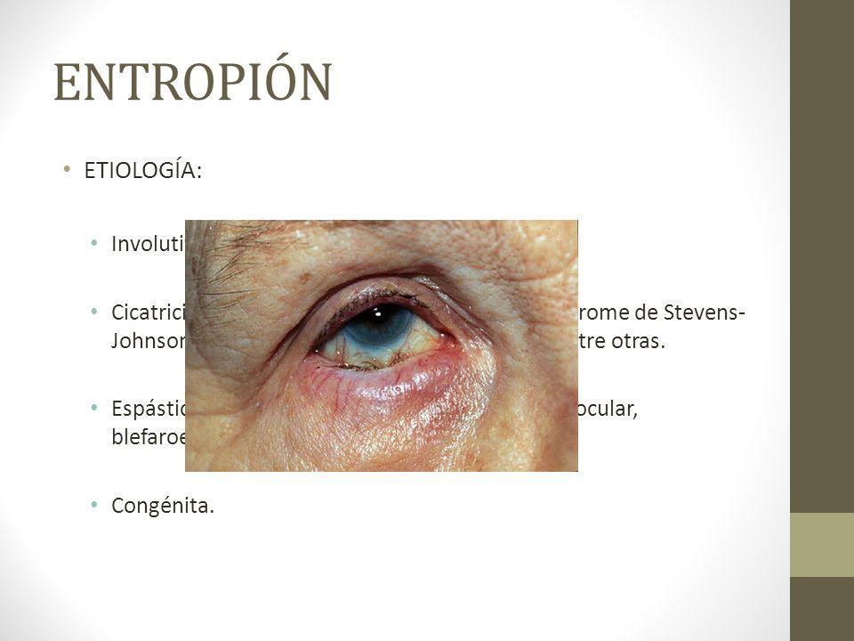 ENTROPIÓN ETIOLOGÍA: Involutiva por envejecimiento.