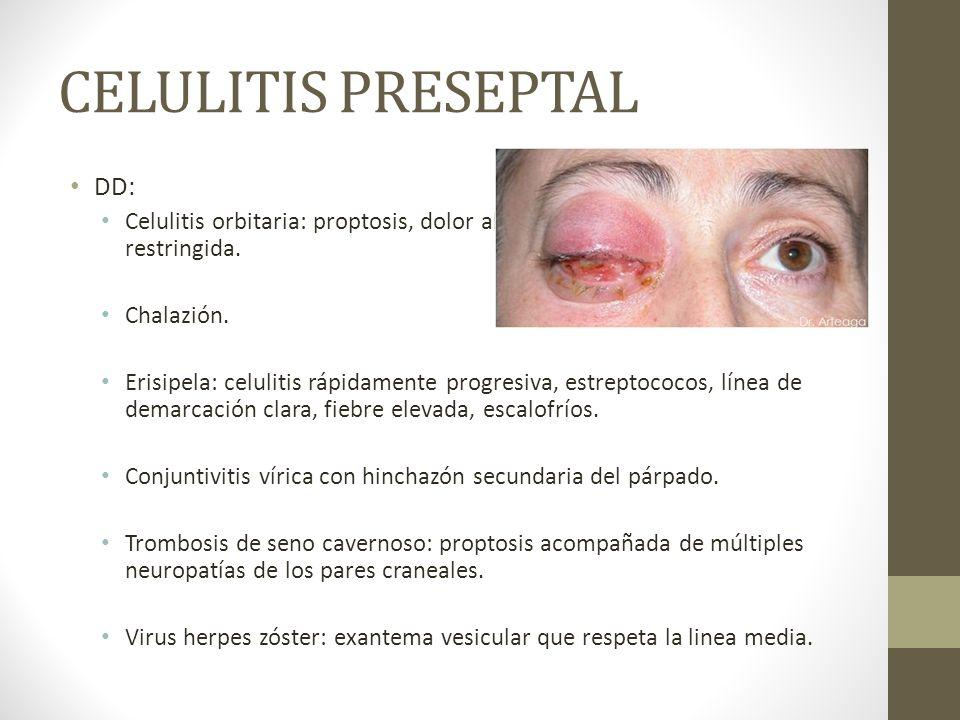 CELULITIS PRESEPTAL DD: