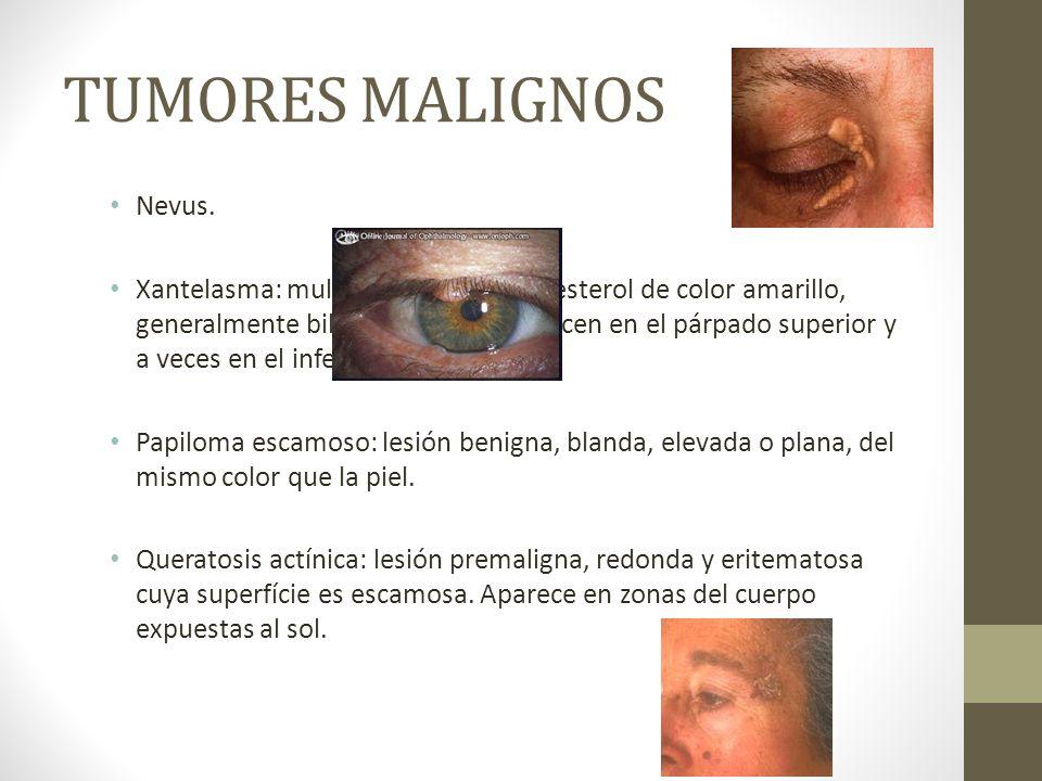 TUMORES MALIGNOS Nevus.