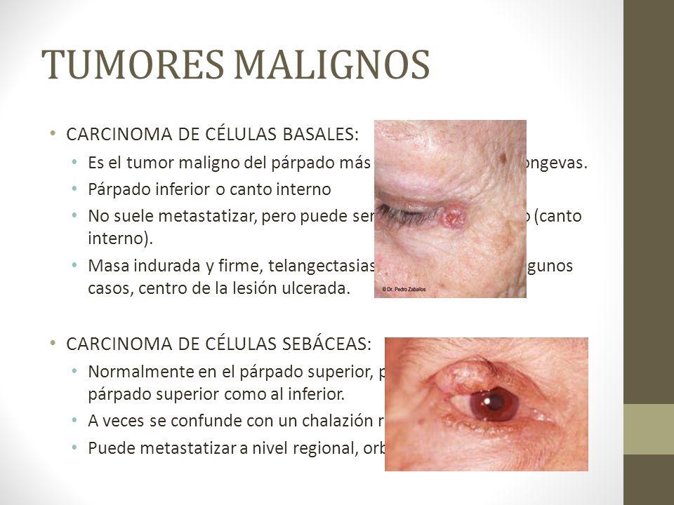 TUMORES MALIGNOS CARCINOMA DE CÉLULAS BASALES: