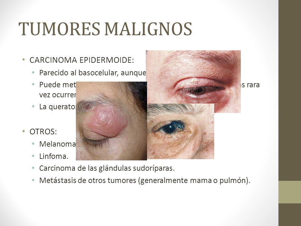 TUMORES MALIGNOS CARCINOMA EPIDERMOIDE: OTROS: