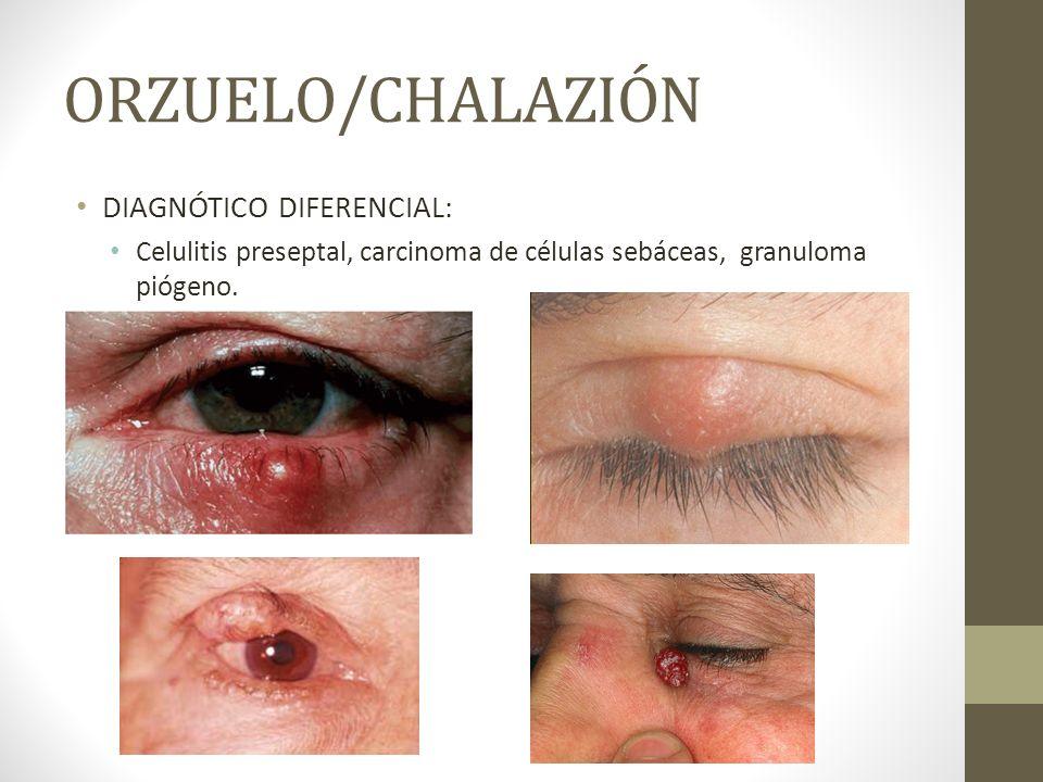 ORZUELO/CHALAZIÓN DIAGNÓTICO DIFERENCIAL: