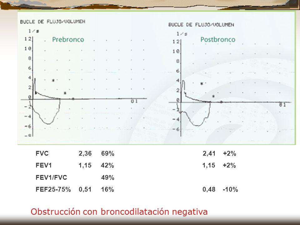 Obstrucción con broncodilatación negativa