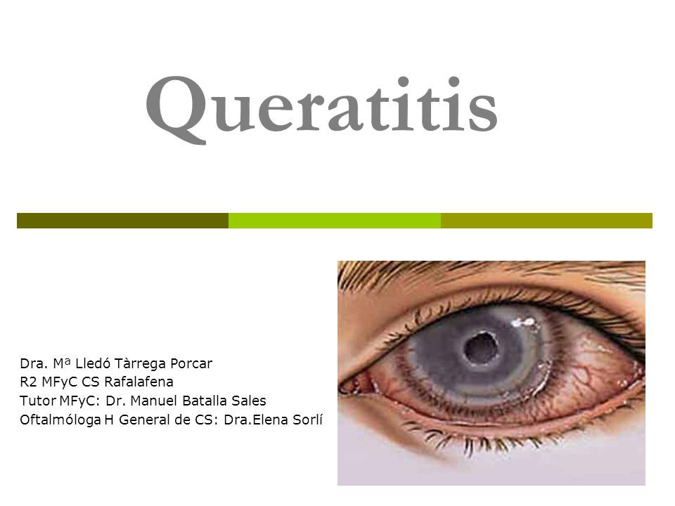 Queratitis Dra. Mª Lledó Tàrrega Porcar R2 MFyC CS Rafalafena