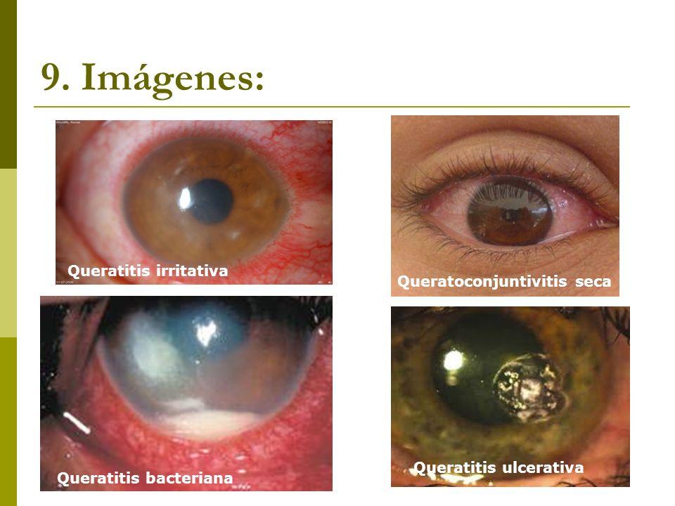 9. Imágenes: Queratitis irritativa Queratoconjuntivitis seca