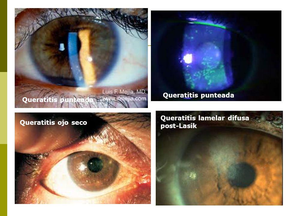 Queratitis punteada Queratitis punteada Queratitis lamelar difusa post-Lasik Queratitis ojo seco