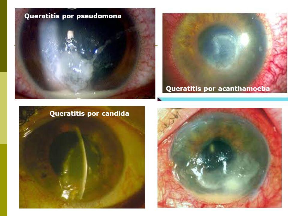 Queratitis por pseudomona