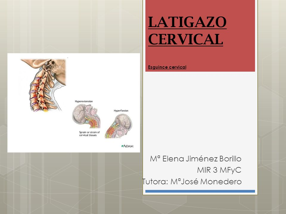 LATIGAZO CERVICAL Esguince cervical