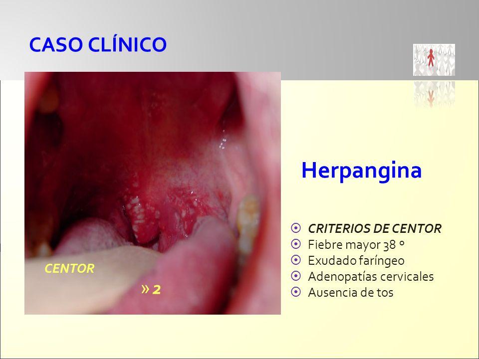 Herpangina CASO CLÍNICO 2 CRITERIOS DE CENTOR Fiebre mayor 38 º