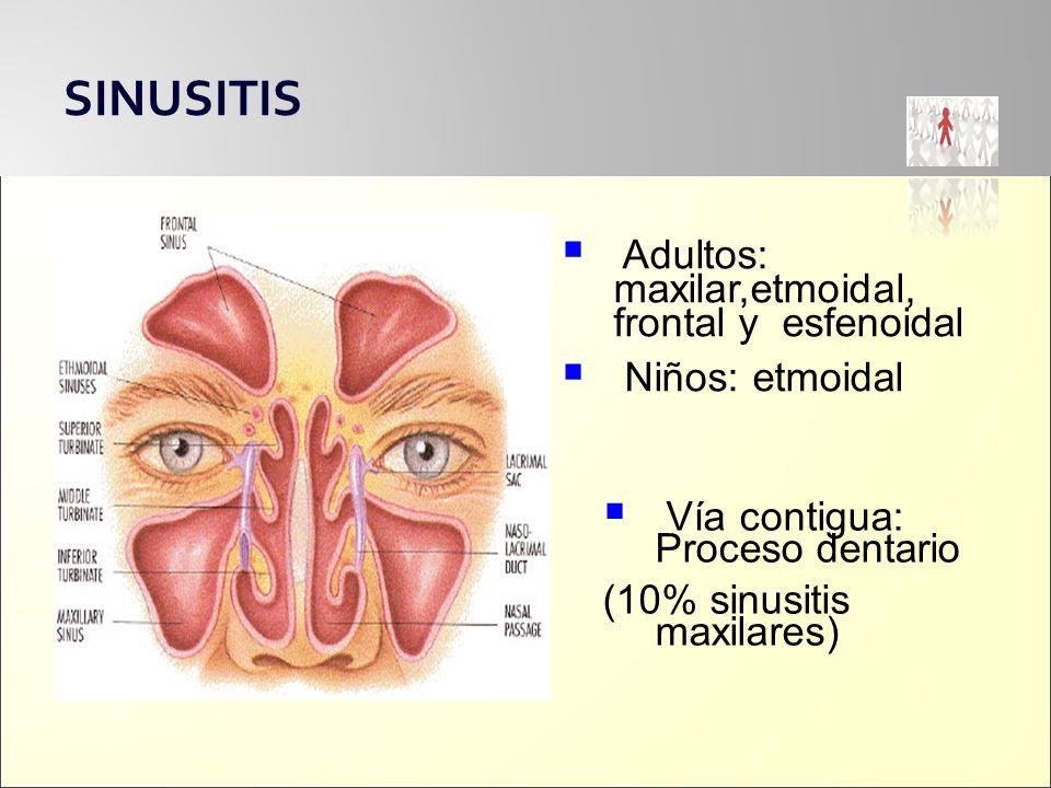 SINUSITIS Adultos: maxilar,etmoidal, frontal y esfenoidal