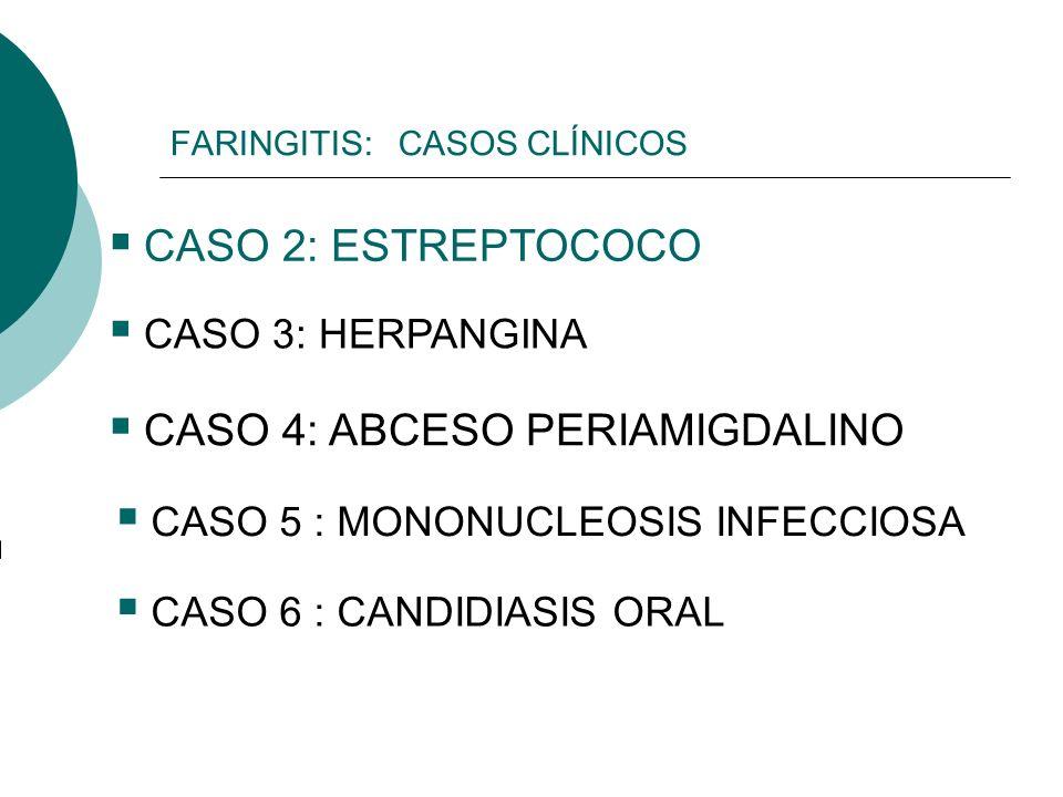 FARINGITIS: CASOS CLÍNICOS